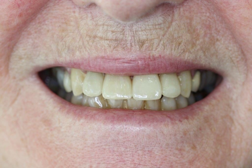 after cosmetic dentistry - teeth crowns