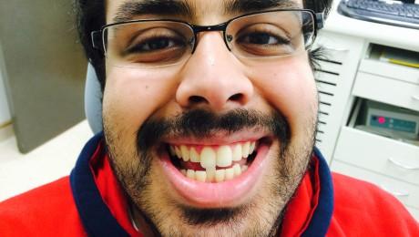 Before Cfast teeth braces