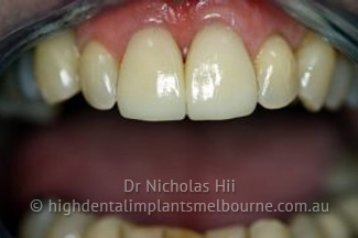 porcelain crowns - e-max crown
